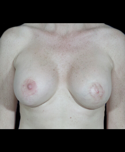 After Breast Asymmetry