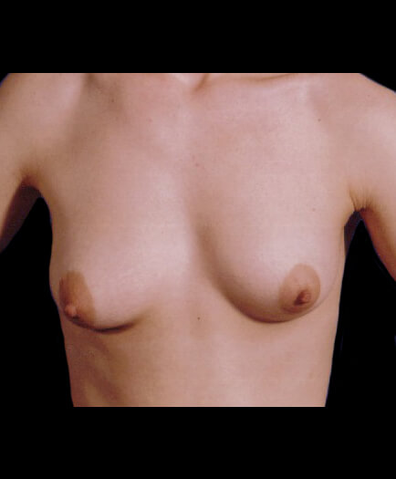 Breast Asymmetry Before
