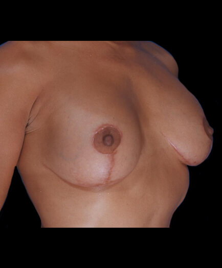 After Breast Lift
