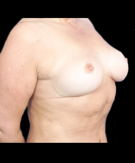 Breast Reduction After Image