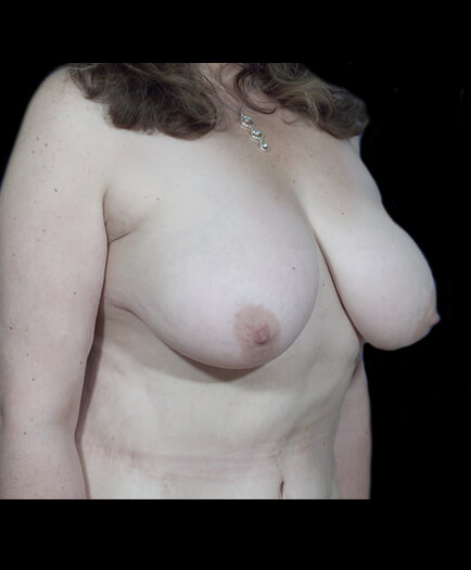 Breast Reduction Before Image