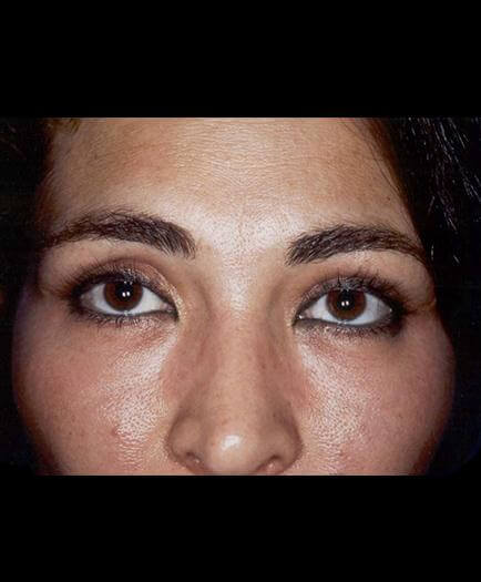 Blepharoplasty Surgery After