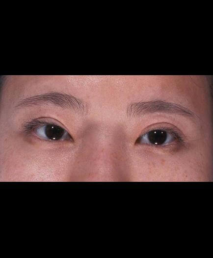 Virginia Eyelid Surgery Results