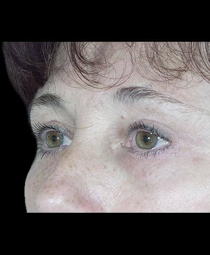 After Blepharoplasty Left Side View