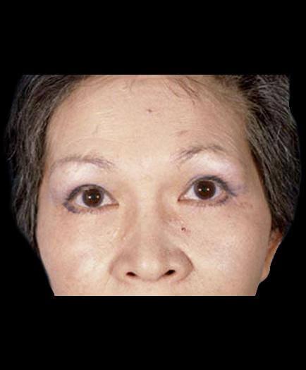 After Virginia Blepharoplasty