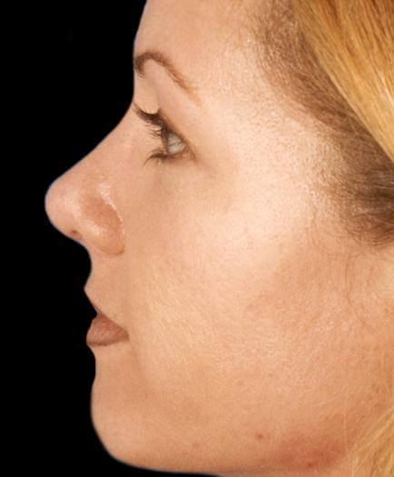 After Rhinoplasty Surgery Side View
