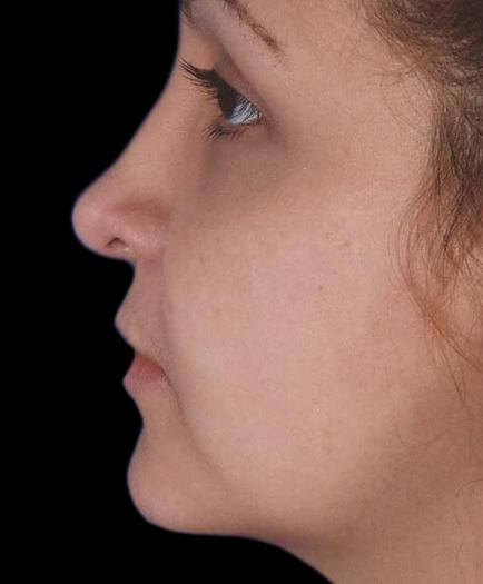 After Nose Surgery Side View