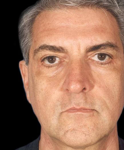 Male Cosmetic Facial Surgery After