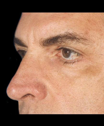 After Male Cosmetic Facial Surgery Side View