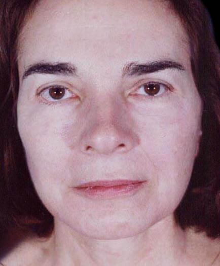 After Combination Facial Rejuvenation