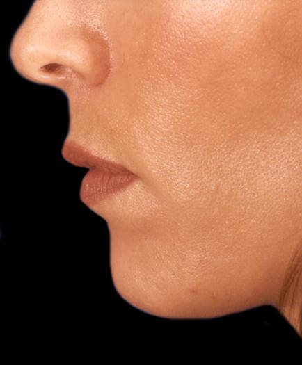 Cosmetic Injections After
