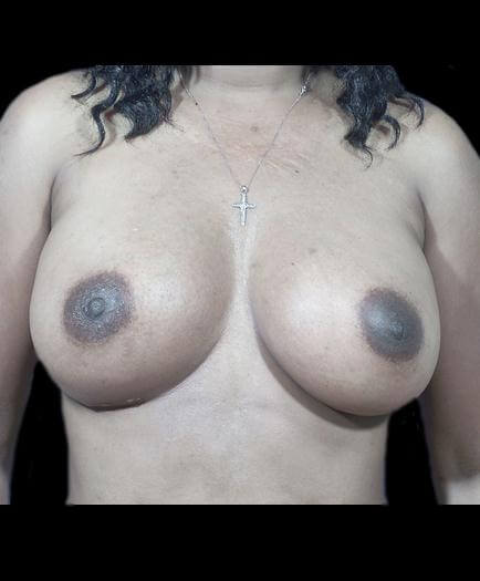 After Breast Implants