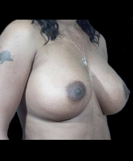 After Breast Implants Right Side View