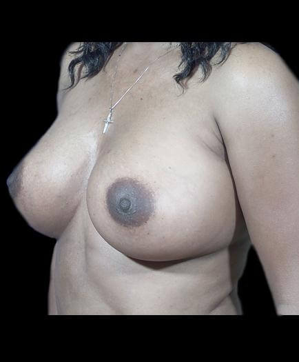 After Breast Implants Left Side View