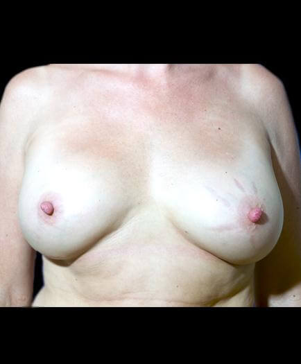 After Breast Augmentation Image