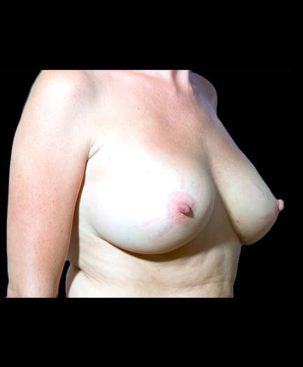 After Breast Implants Image