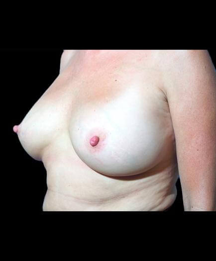 After Breast Augmentation Surgery Image