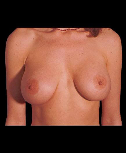 After Virginia Breast Augmentation