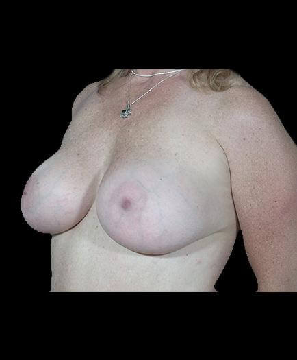 Breast Implant Surgery After Left Side View