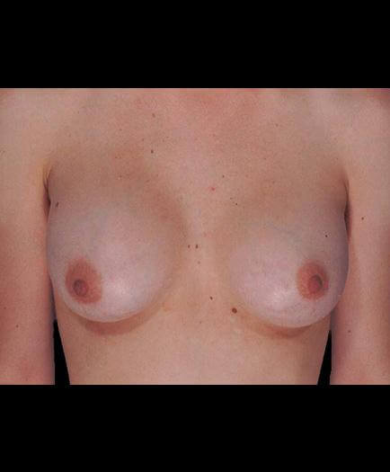 After Virginia Breast Implants