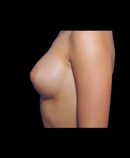 After Breast Implant Surgery Left Side View