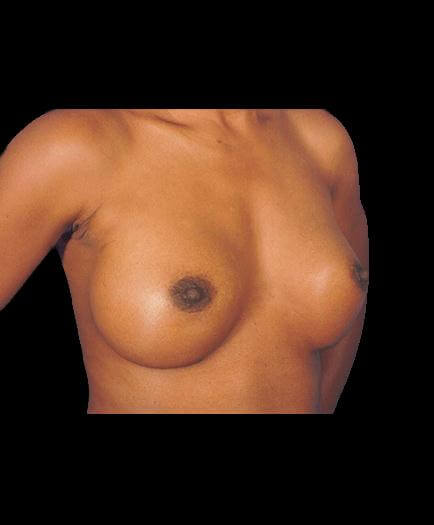 After Breast Implant Surgery Right Side View