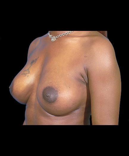 After Breast Augmentation Left Side Image