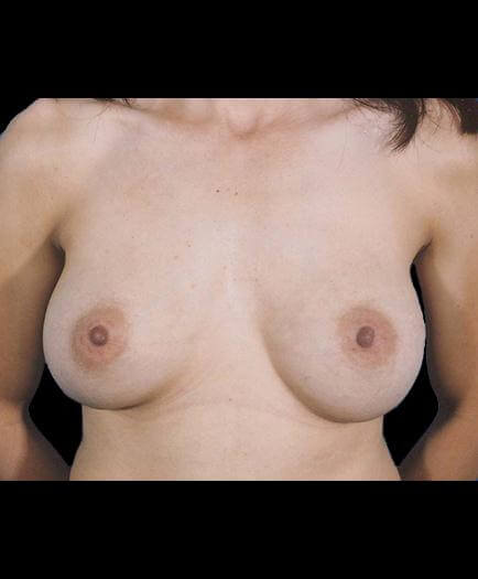Breast Augmentation After Image