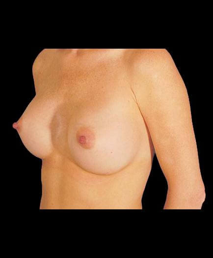 Breast Implants After View