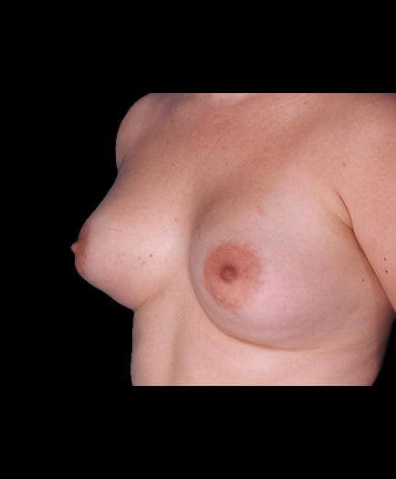 Breast Augmentation Surgery After View