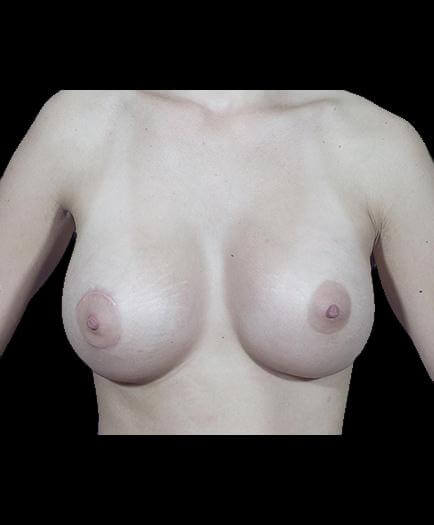 Breast Implant Surgery After View