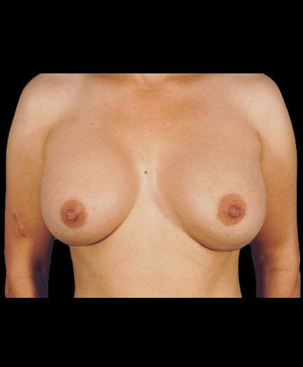 Breast Implant Surgery After Photo