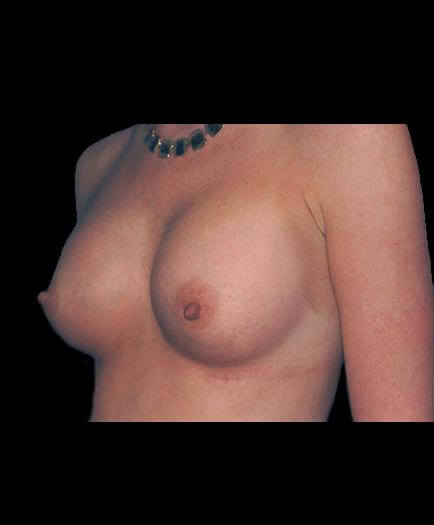 Breast Implants After Picture
