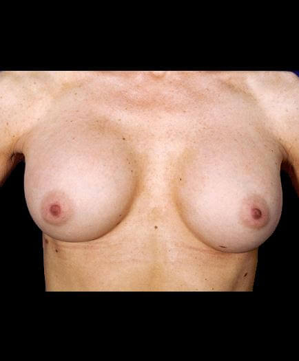 Breast Augmentation Surgery After Picture