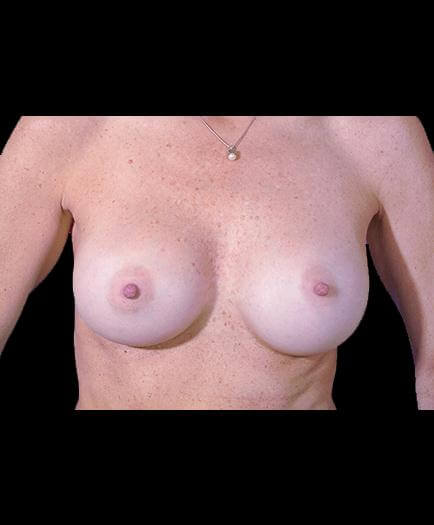 Breast Implant Surgery After Picture