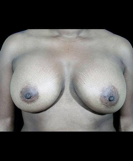 After Breast Augmentation View