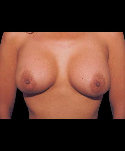 After Breast Implants View