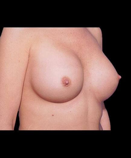 After Breast Augmentation Surgery View