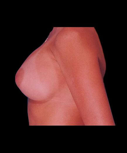 After Breast Implant Surgery View