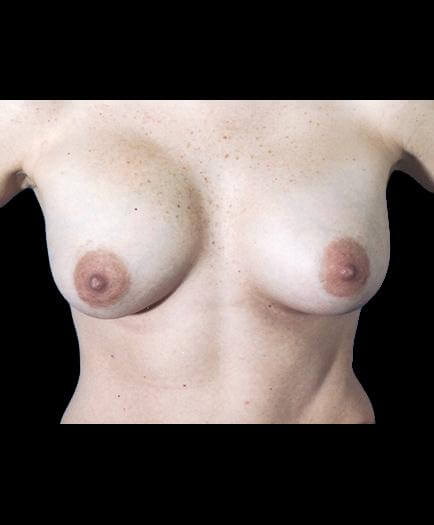 After Breast Implants Photo