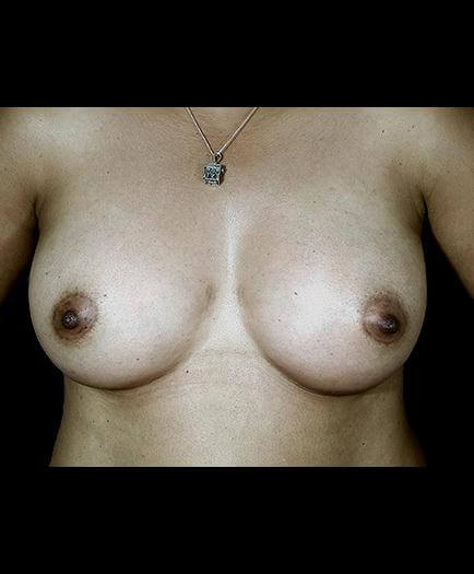 After Breast Augmentation Surgery Photo