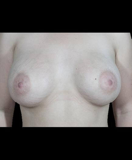 After Breast Implant Surgery Photo