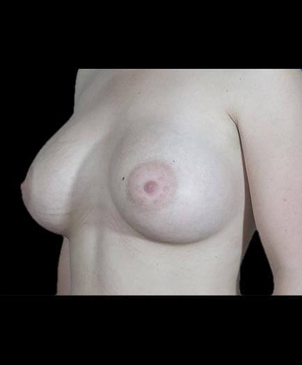 After Breast Implant Surgery Image