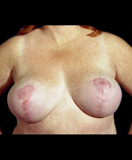 After Breast Reduction Front Image