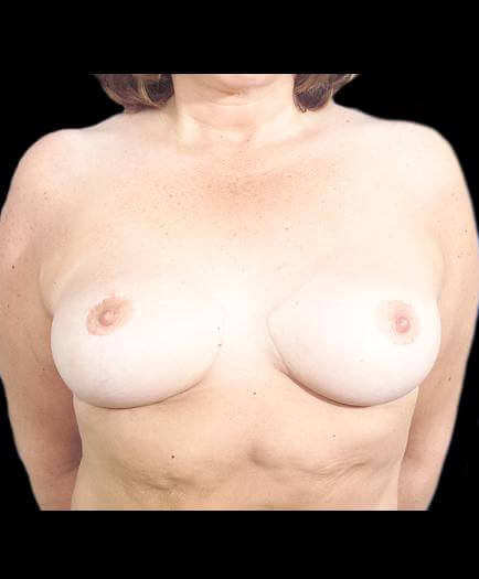 Breast Reduction Surgery After Photo