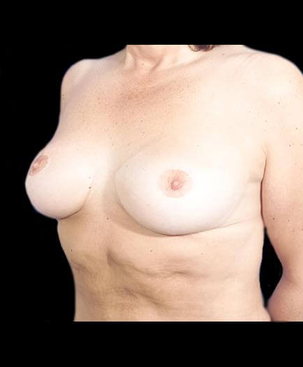 Reduction Mammoplasty After Photo