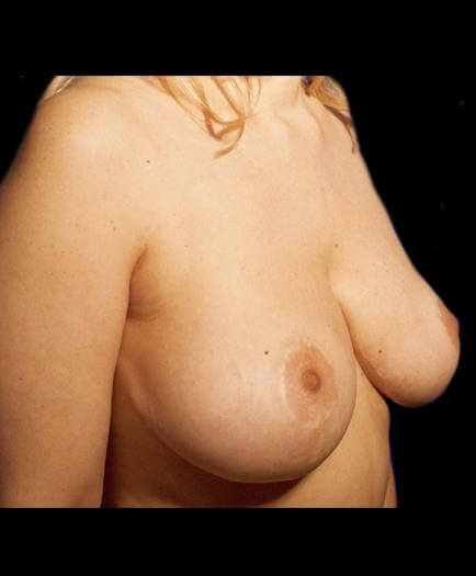 Virginia Reduction Mammoplasty After Photo