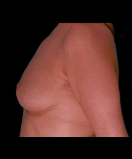 Reduction Mammoplasty Surgery After Photo