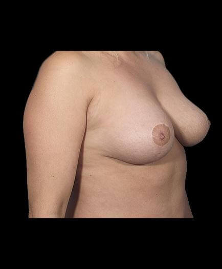 Breast Reduction After Right Side Image
