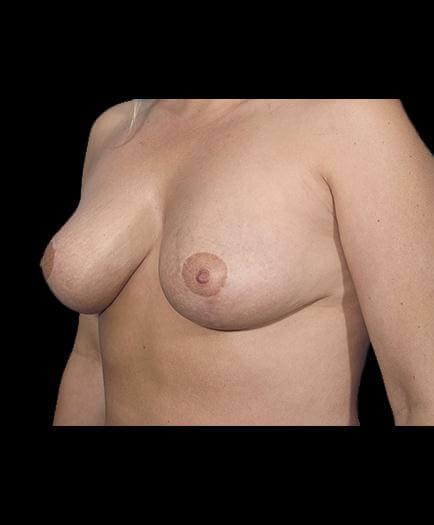 Breast Reduction After Left Side Image